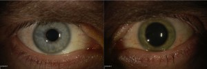 The eyes of Dr. Ian Crozier, a volunteer who contracted Ebola in Sierra Leone.