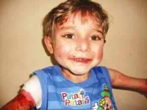 Mineira arrecada cremes para o menino Lukinhas, no Brasil