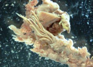Pesquisadores da FL descobrem parasita que causa meningite