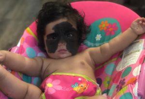 Bebê Luna embarca para a Rússia para a primeira cirurgia de remoção de nevo
